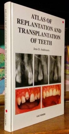 Atlas of Replantation and Transplantation of Teeth. Jens O. Andreasen